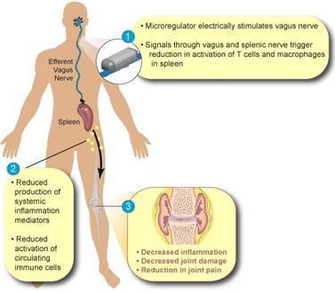 SetPoint-Medical-nerver-stimulation